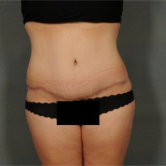 45-54 year old woman treated with Tummy Tuck after 1861932