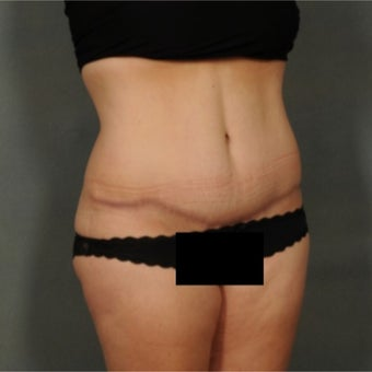 45-54 year old woman treated with Tummy Tuck 1861932