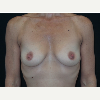 35-44 year old woman treated with Breast Implants before 3652084