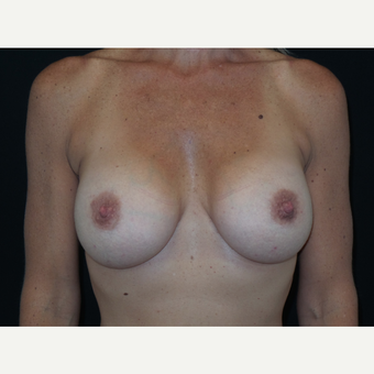 35-44 year old woman treated with Breast Implants after 3652084