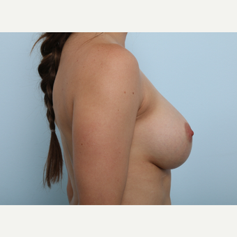 Breast Augmentation after 3345331