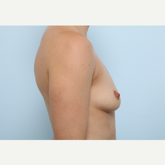 Breast Augmentation before 3345331