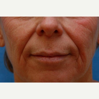 Hanging upper lip treated with a Lip Lift