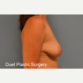 35-44 year old woman treated with Breast Lift with Implants before 3368644