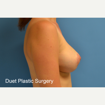 35-44 year old woman treated with Breast Lift with Implants after 3368644