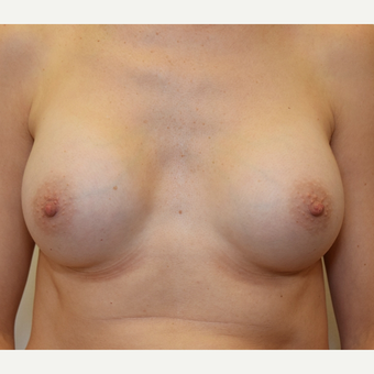 Breast Augmentation after 3108813