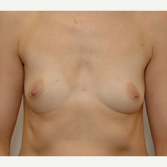 Breast Augmentation before 3108813