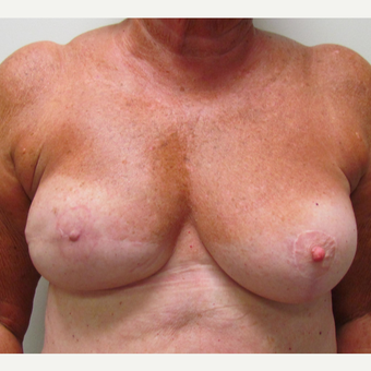 Nipple Surgery for This 74 Year Old Woman after 3387176