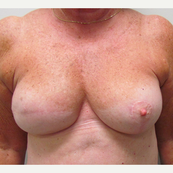 Nipple Surgery for This 74 Year Old Woman before 3387176