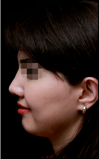 25-34 year old woman treated with Rhinoplasty after 3204731