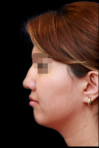 25-34 year old woman treated with Rhinoplasty before 3204731