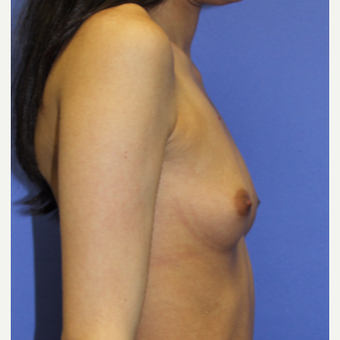 25-34 year old woman treated with Breast Augmentation before 3508128