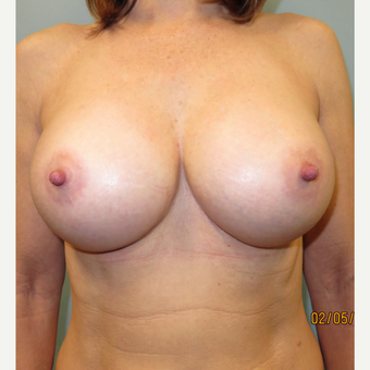 25-34 year old woman treated with Breast Augmentation after 3725324