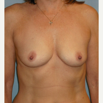 25-34 year old woman treated with Breast Augmentation before 3725324