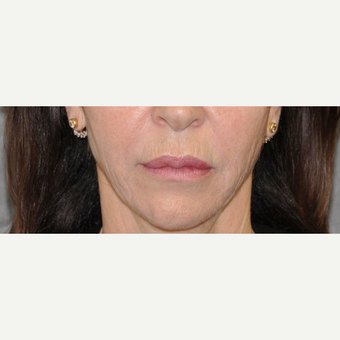 55-64 year old woman treated with Lip Lift before 3004951