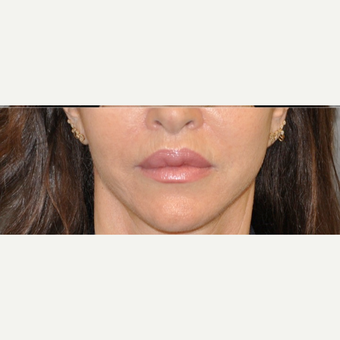 55-64 year old woman treated with Lip Lift after 3004951