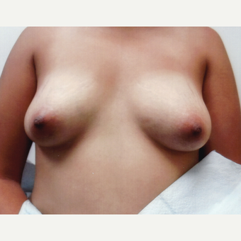 25-34 year old woman treated with Breast Augmentation before 3495758