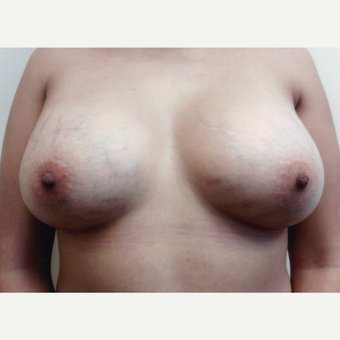 25-34 year old woman treated with Breast Augmentation after 3495758