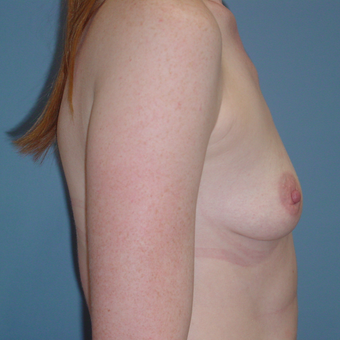 25-34 year old woman treated with Breast Augmentation before 3059577