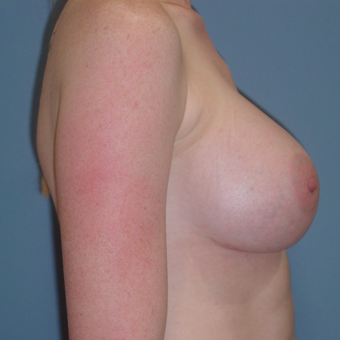25-34 year old woman treated with Breast Augmentation after 3059577