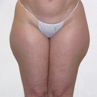 45 year old woman treated with Liposuction before 3684906