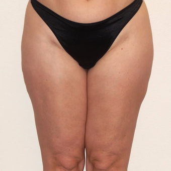 45 year old woman treated with Liposuction after 3684906