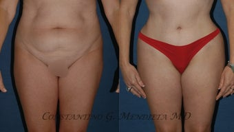 Tummy Tuck before 1161857