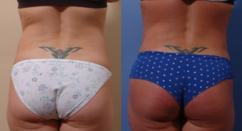 35  year old woman after liposuction. 1403358