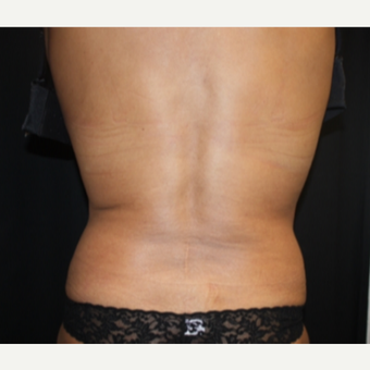 55-64 year old woman treated with CoolSculpting  after 2587653