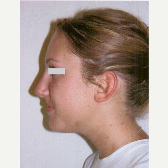 25-34 year old woman treated with Rhinoplasty after 3033148