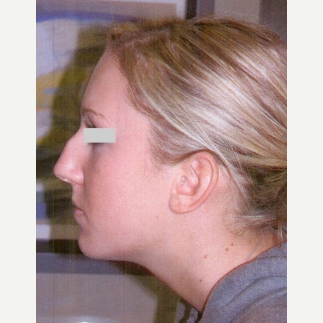 25-34 year old woman treated with Rhinoplasty before 3033148