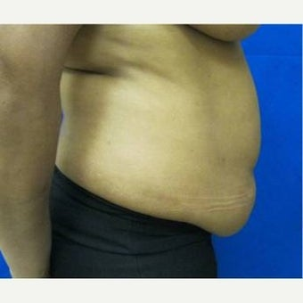 34 year old woman treated with Tummy Tuck 1712102
