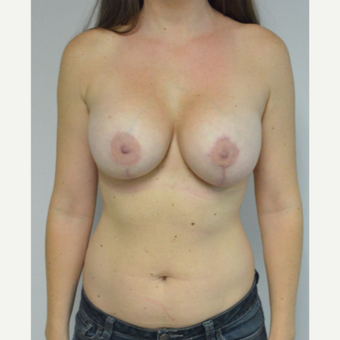 25-34 year old woman treated with Breast Implant Revision after 3481792