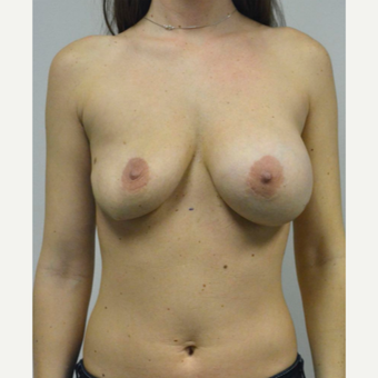25-34 year old woman treated with Breast Implant Revision before 3481792