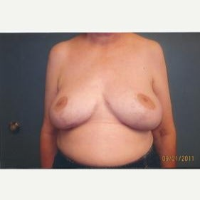 55-64 year old woman treated with Breast Reduction after 2486429