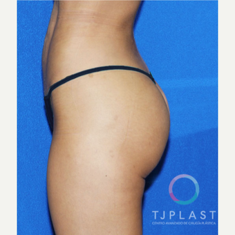 25-34 year old woman treated with Butt Implants after 3765204