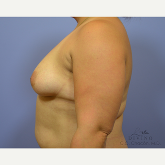35-44 year old woman treated with Breast Augmentation before 3419107