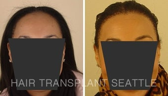 Female with Traction Alopecia and Hair Transplant Repair before 1578511