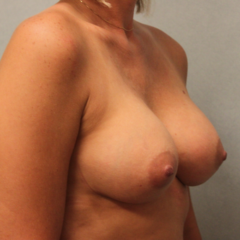 35-44 year old woman treated with Breast Implants after 3460041
