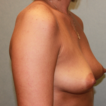 35-44 year old woman treated with Breast Implants before 3460041