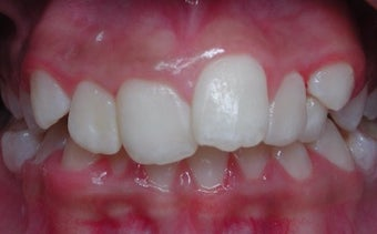 17 or under year old woman treated with Braces before 3658083
