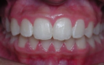 17 or under year old woman treated with Braces after 3658083