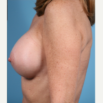53 year old woman treated with Breast Augmentation - 350 cc moderate profile saline implants after 3432288