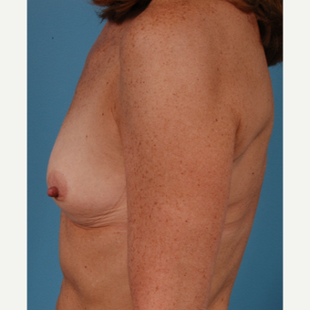 53 year old woman treated with Breast Augmentation - 350 cc moderate profile saline implants before 3432288