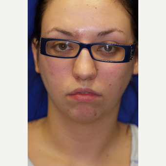 25-34 year old woman treated with Chin Liposuction before 3260031