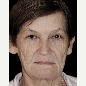 55-64 year old woman treated with Chemical Peel before 3417522