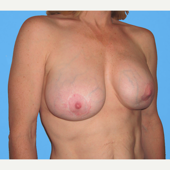 35-44 year old woman treated with Breast Lift with Implants before 3748730