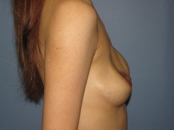 Breast Augmentation/ Breast Revision on 35-year-old 951085