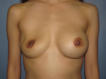 Breast Augmentation/ Breast Revision on 35-year-old before 951085