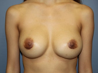 Breast Augmentation/ Breast Revision on 35-year-old after 951085